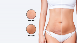 Liposuction Can Help You to Get Your Shape Back